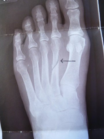 how to know if its a stress fracture in foot